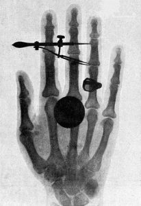 An x-ray image of Bertha Röentgen's hand is shown with a dark circular spot superimposed on the fingers.