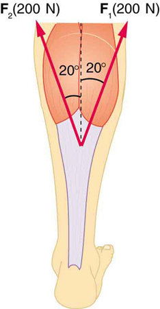 An Achilles tendon is shown in the figure with two forces acting upward, one at an angle of plus twenty degrees, one at minus twenty degrees. F sub one, equal to two hundred newtons, is shown by a vector making an angle twenty degrees toward the right with the vertical, and F sub two, equal to two hundred newtons, is shown making an angle of twenty degrees left from the vertical.