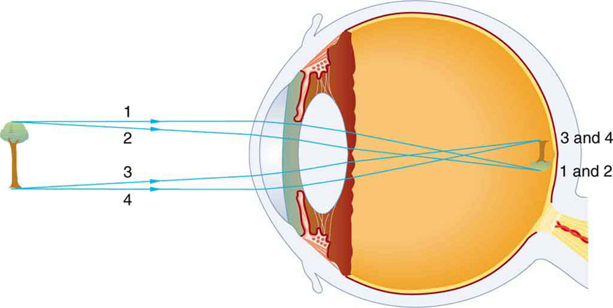 Ray diagram in the picture shows the internal structure of an eye and a tree that is taken as an object. An inverted image of the tree is formed on retina with the light rays coming from the top and bottom of the tree; converging most at the cornea and upon entering and exiting the lens. The rays coming from top of the tree are labeled one, two, while the bottom rays are labeled three, four. The inverted image of the tree shows rays labeled three, four at the top and one, two at the bottom.