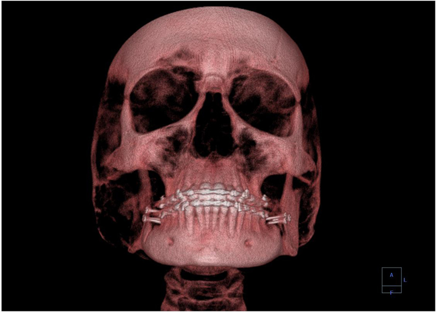 A 3-D image showing a human skull from the front.
