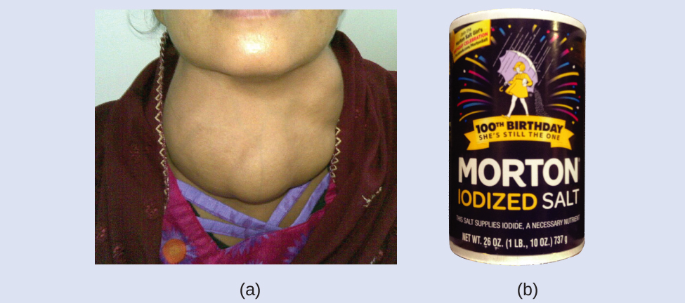 Figure A shows a photo of a person who has a very swollen thyroid in his or her neck. Figure B shows a photo of a canister of iodized salt.