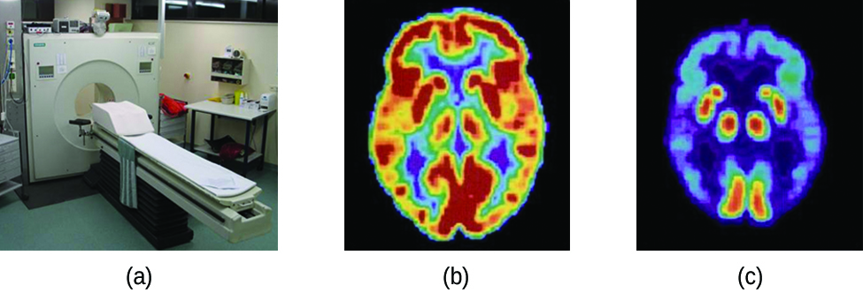 "Three pictures are shown and labeled ""a,"" ""b"" and ""c."" Picture a shows a machine with a round opening connected to an examination table. Picture b is a medical scan of the top of a person's head and shows large patches of yellow and red and smaller patches of blue, green and purple highlighting. Picture c also shows a medical scan of the top of a person's head, but this image is mostly colored in blue and purple with very small patches of red and yellow."